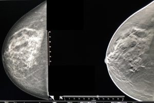 A breast mammogram