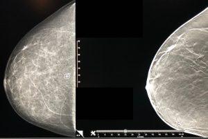 A breast mammogram