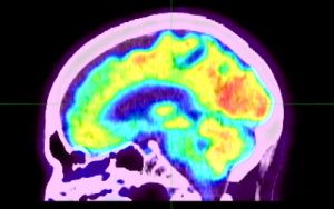 PET/CT scan of the brain
