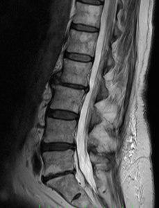An MRI of the spine