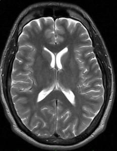 An MRI of the brain